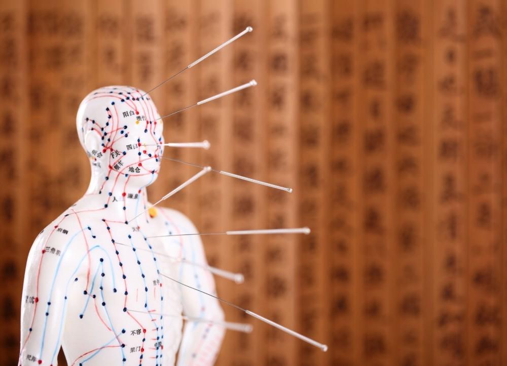 Acupunctura_mic